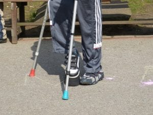 Legs of kid holding crutches