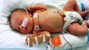 Sick baby in hospital hooked up to monitors and with an arm in a cast